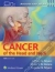 Cancer of the Head and Neck Jeffrey Myers, Ehab Hanna 9781451191134
