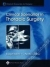 Clinical Scenarios in Thoracic Surgery Robert Kalimi, L. Penfield Faber 9780781747974