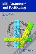 MRI Parameters and Positioning Torsten Bert Moeller, Emil Reif 9783131305824