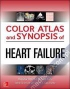 Color Atlas and Synopsis of Heart Failure color-atlas-and-synopsis-of-heart-failure-baliga-mcgraw-hill-education-medical 9780071749381
