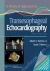 A Practical Approach to Transesophageal Echocardiography Albert C. Perrino, Scott T. Reeves 9781451175608